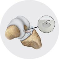 Implantation Procedure